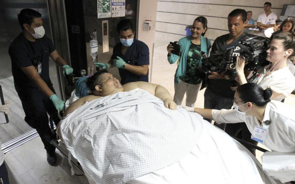 L 39 homme le plus gros du monde a t op r au mexique avec succ s vid o barlamane - L homme le plus beau au monde ...